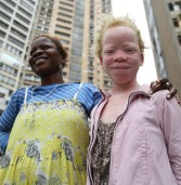Albinos pay the price as political ambitions get ugly