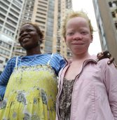 """Light in darkness for persons with albinism"" – UN experts hail progress despite dire obstacles"