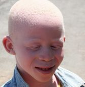 Action on Albinism forum launched in Tanzania
